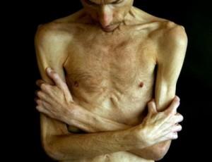 anorexia - Bryan Bixler #4
